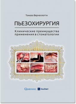 Пьезохирургия. Клинические преимущества применения в стоматологии (Томазо Варчелотти (Tomaso Vercellotti)) 2013 г.