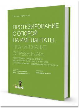 Протезирование с опорой на имплантаты: планирование от результата (ред. Штефан Вольфарт) 2016 г.