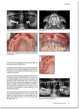 Протоколы протезирования в стоматологической имплантологии. Протезирование при полной адентии: Руководство по имплантологии. ITI том 4 (Д. Висмайер, П. Казентини, Г. Галуччи, М. Кьяпаско) 2017 г.