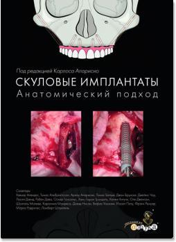 Скуловые имплантаты. Анатомический подход (редактор Карлос Апарисио) 2017 г.