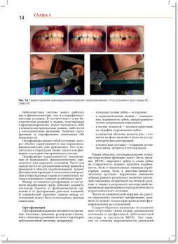 Стоматология. Нейростоматология. Дисфункции зубочелюстной системы (Л.С. Персин, М.Н. Шаров) 2013 г.