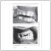 Функциональная окклюзия: от височно-нижнечелюстного сустава до планирования улыбки (Питер Е. Доусон)