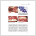 Периимплантиты: этиология, диагностика и лечение (Франк Шварц, Юрген Бекер) 2014 г.