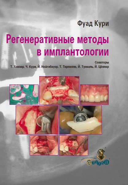 Фуад кури регенеративные методы в имплантологии купить