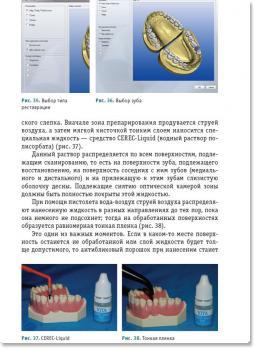 CAD/CAM технология реставрации зубов - СЕREС (Лебеденко И.Ю.) 2014 г.