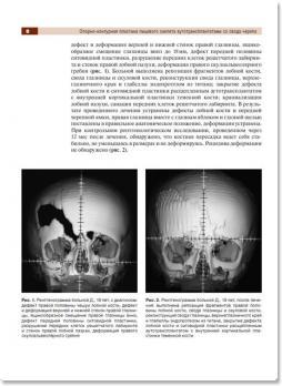 Черепно-лицевая хирургия в формате 3D:атлас (Бельченко В.А., Притыко А.Г., Климчук А.В., Филлипов В.В.) 2010 г.