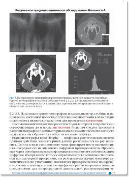 Одонтогенные кисты челюстей (Аснина С.А.) 2012 г.