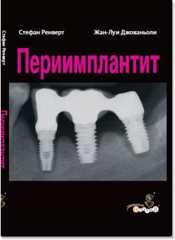 Периимплантит (Стефан Ренверт, Жан-Луи Джованьоли) 2014 г.