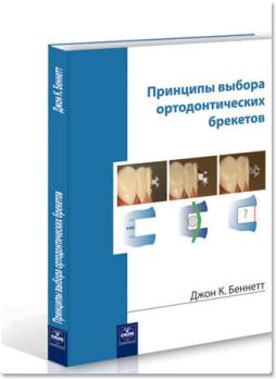 Принципы выбора ортодонтических брекетов (Джон К. Беннетт)