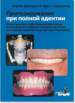 Протезирование при полной адентии. Клинические и зуботехнические этапы изготовления съемных полных протезов по модифицированному методу Лаурицена (Юрген Дапприх, Эрнст Ойдтманн) 2007 г.
