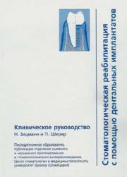 Стоматологическая реабилитация с помощью дентальных имплантатов
